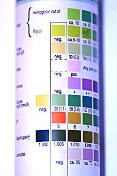 Combur Urinalysis